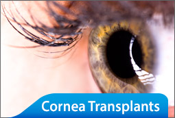 Price-Vision-Group-Cornea-Transplants